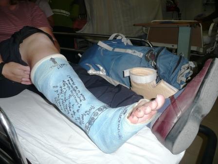 Broken Leg Soon To Be Cut Cast Delhi Katie S Round The World Trip